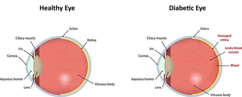 Chart showing a normal eye vs a diabetic eye