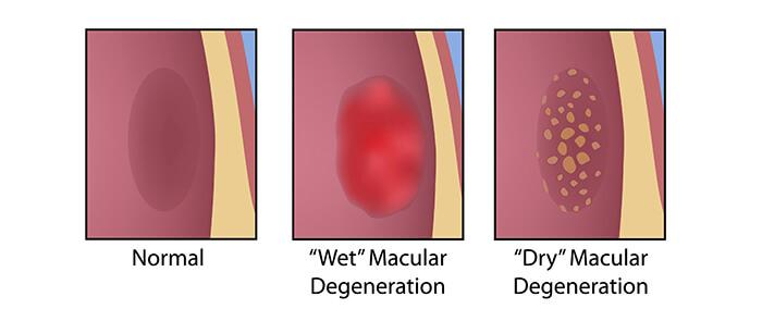 Macular Degeneration Types