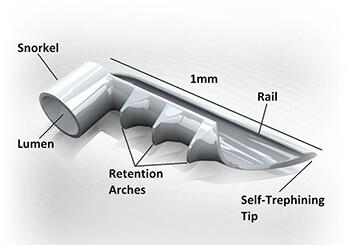 iStent Diagram